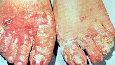 Solución  casera y defintiva hongos del pie, pie de atleta
