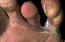 Omnihoz de las uñas el tratamiento
